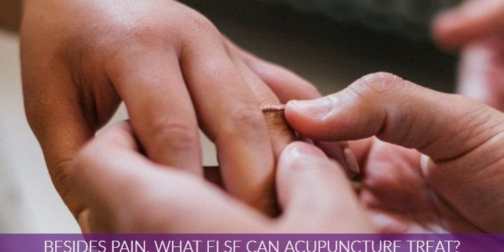 Besides Pain What Can Acupuncture Treat  1 712x356 1